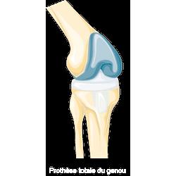 膝關節置換-腳骨折復健